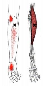 stretchingpro-etirements-bras-massage-avant-bras-brachoradialis