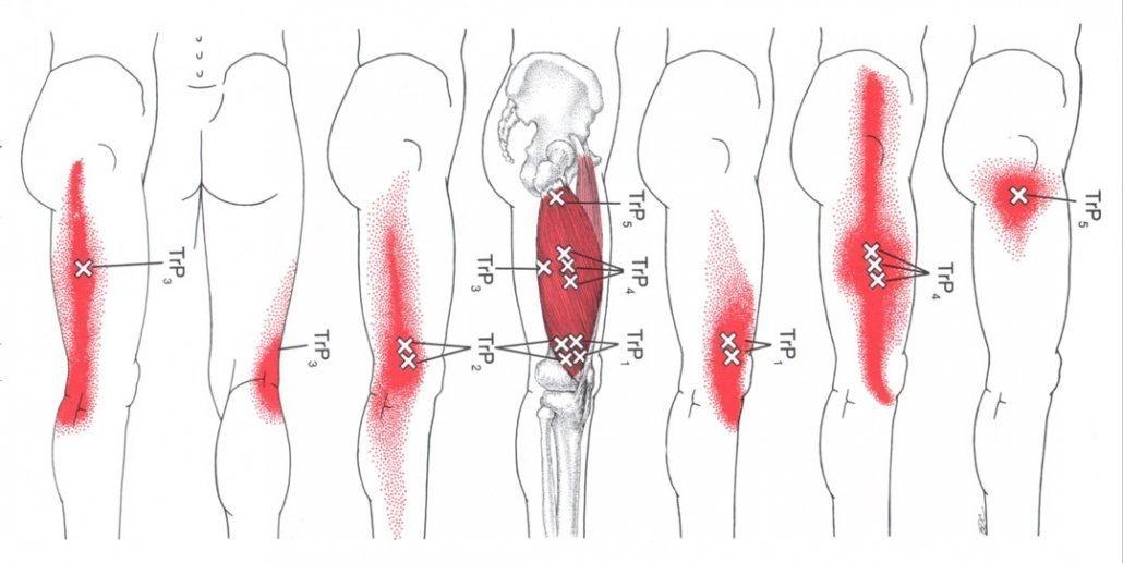 stretchingpro-etirements-genoux-massage-vaste-lateral-vastus-lateralis