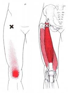 stretchingpro-etirements-hanche-massage-quadriceps-rectus-femoris