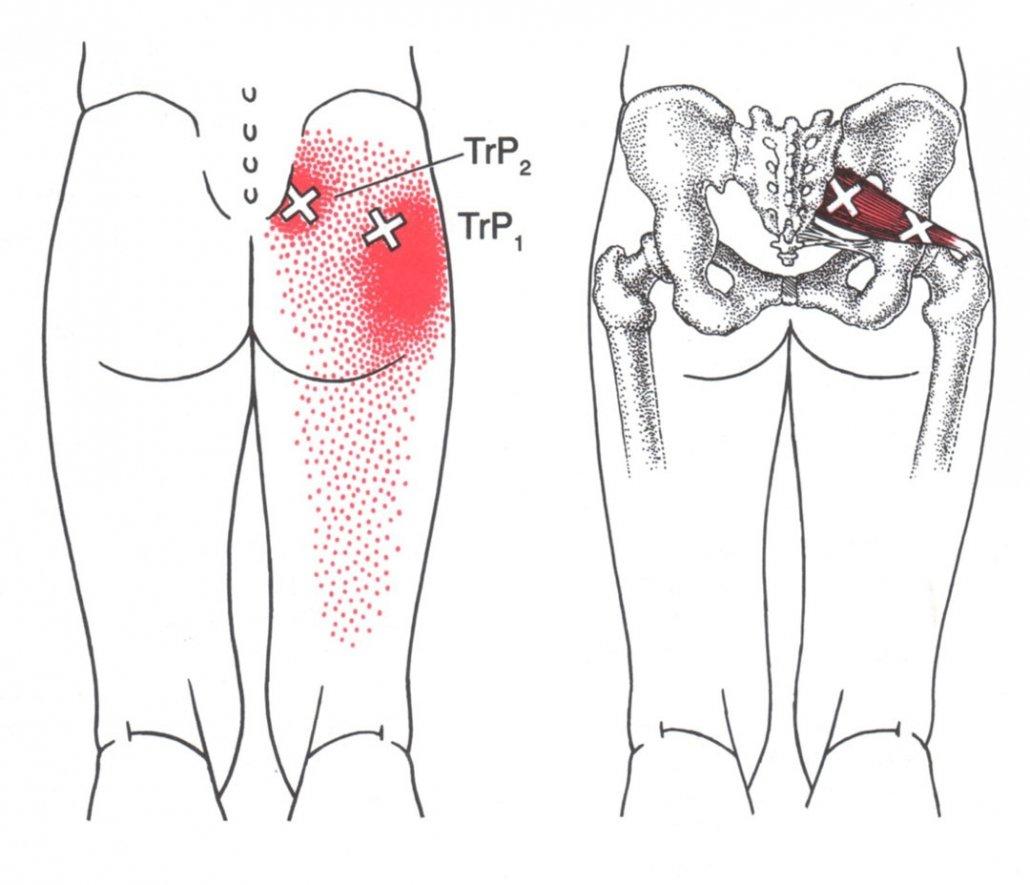 stretchingpro-etirements-nerf-sciatique-massage-piriforme-piriformis